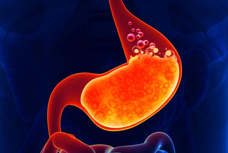 Problemas de acidez estomacal